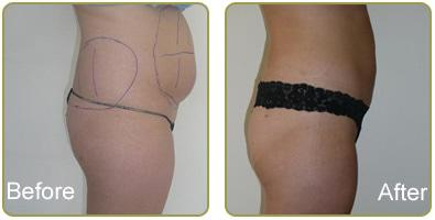 Laser Liposuction Ballito Dr Ally