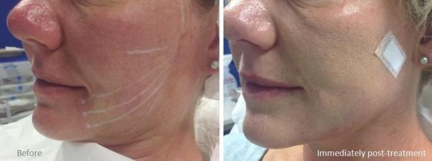 Thread Facelift Dr Ally Ballito