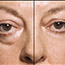 Yes, you can get rid of under eye bags