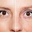 Reap the Benefits of Dermapen Skin Needling