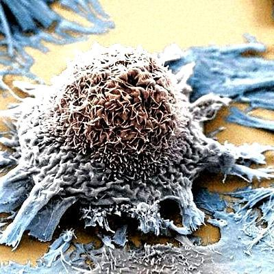 Next step is universal blood test to detect early cancer